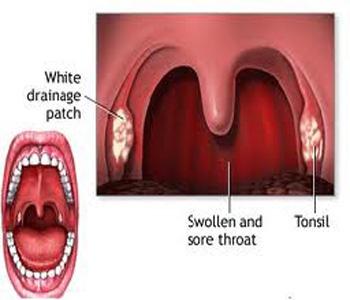 throat-1
