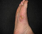 blister-1-A